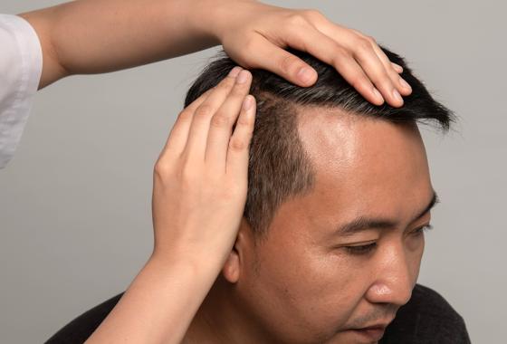 高醫毛髮增生技術潛力大1
